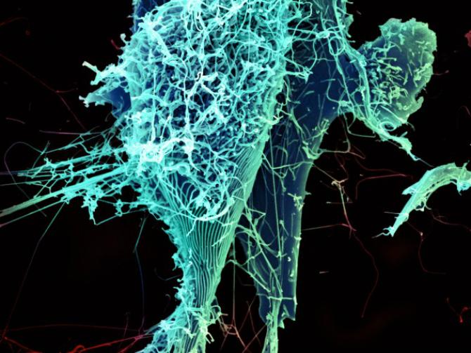 ebola_NIAID